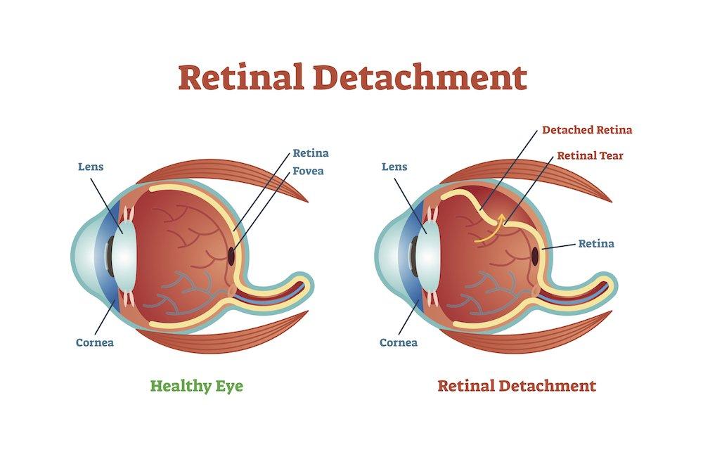 distacco retina