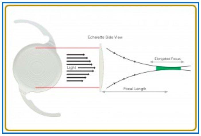 lente intraoculare symfony 1