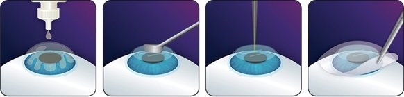 procedura intervento prk